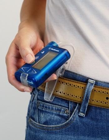 Медтроник АСС 107 Клипса для инсулиновой помпы Medtronic